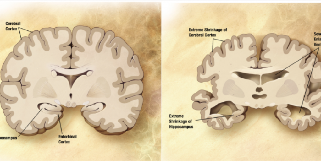 Alzheimer's_disease_brain_comparison CC BY-SA wikipedia